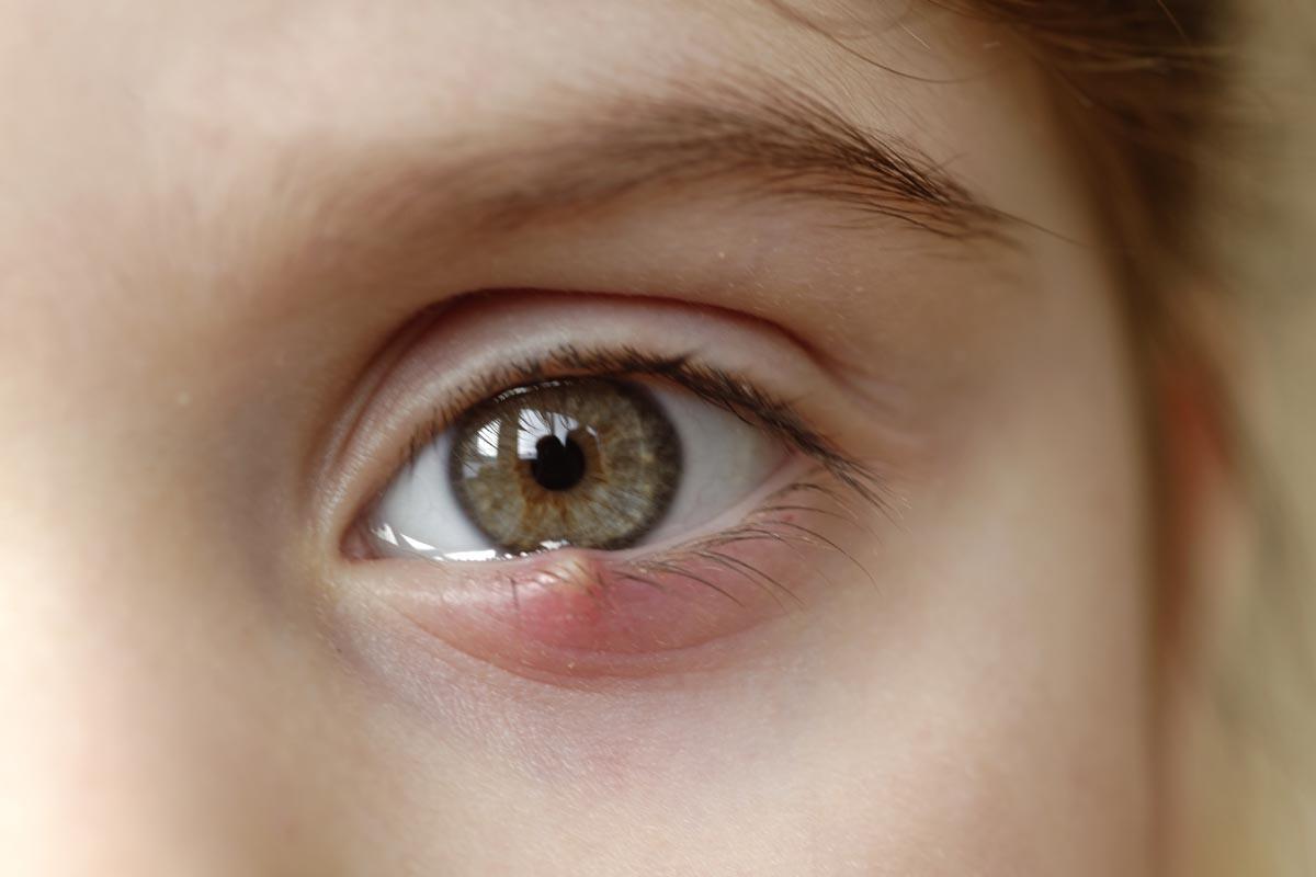 Iper lacrimazione degli occhi: risolutivo l'intervento di dacriocistorinostomia mini invasiva con un nuovo laser hi-tech